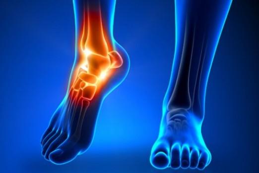 怪我には栄養面からのアプローチも大切!【疲労骨折を未然に防ぐ】